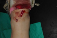 <p>Повреда ноге коју је задобила</p>